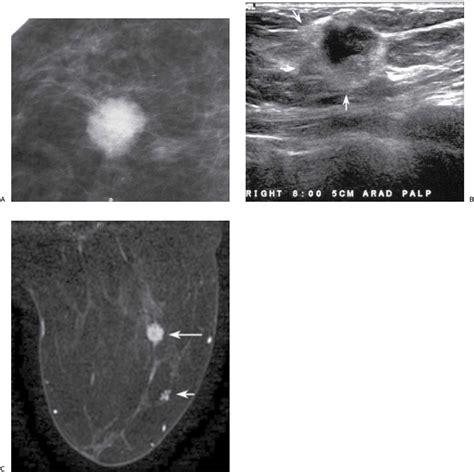 breast echotexture picture 3