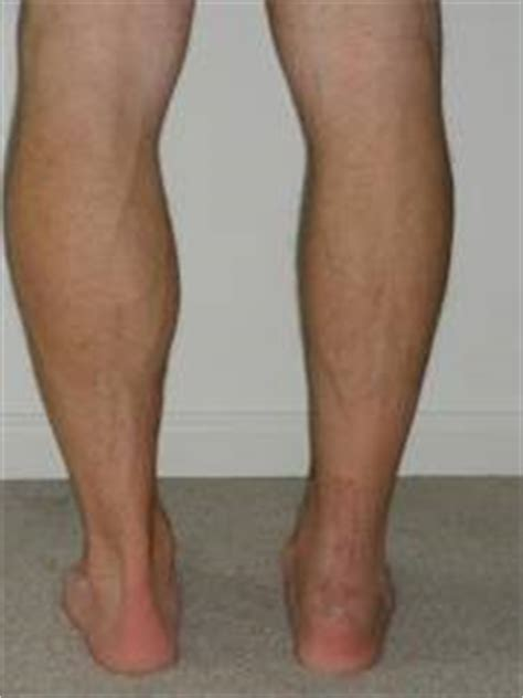 calf muscle lump picture 15