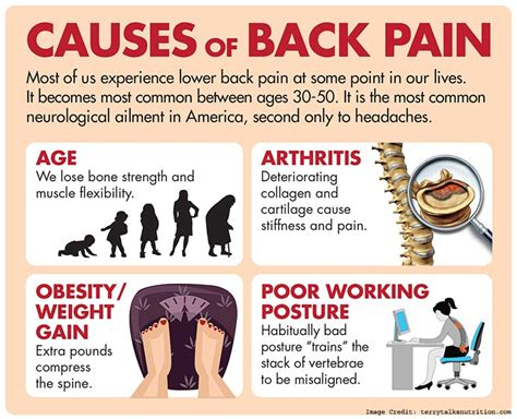 can hyperthyroidism cause back pain and gain picture 2