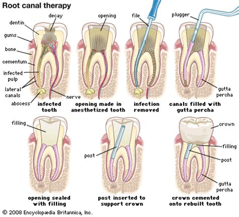 teeth rootcanel picture 2