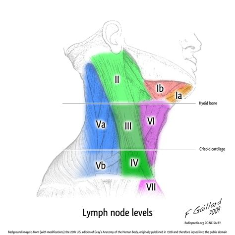 cleveland clinic; thyroid and abnormal lymph nodes and/or picture 8