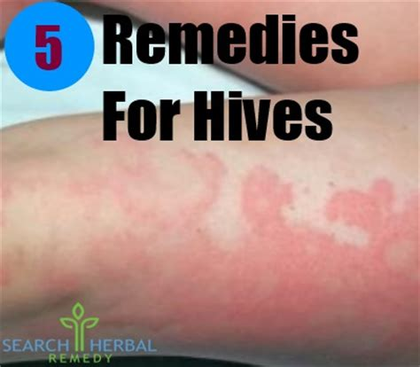 remedies for hives picture 6