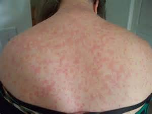 allergic reaction skin rashes picture 9