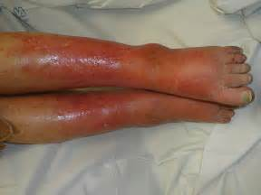 celluliteous infection picture 6