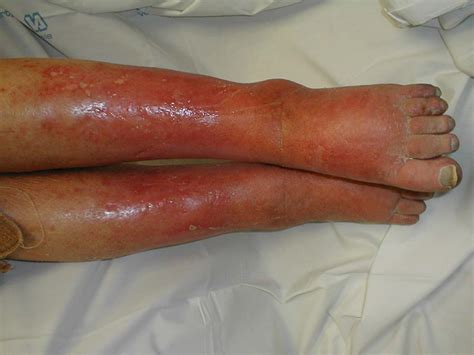 cellulitice treatment and drugs picture 9