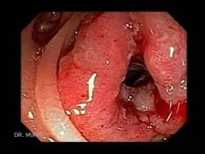 cancer outside the colon picture 2