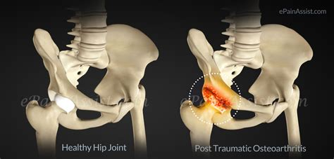 traumatic degenerative joint disease picture 2