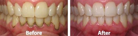 boneloss in teeth picture 14