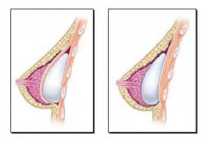 breast augmentation placement picture 10