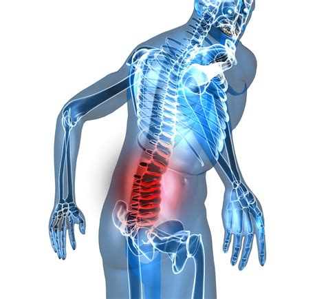lower back pain treatment picture 14