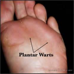 medical plantar warts picture 13