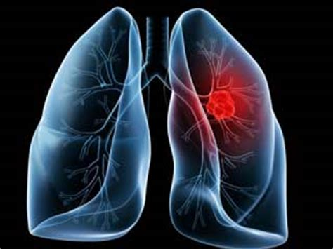 ill workcool that will workbacterial lung infection picture 20