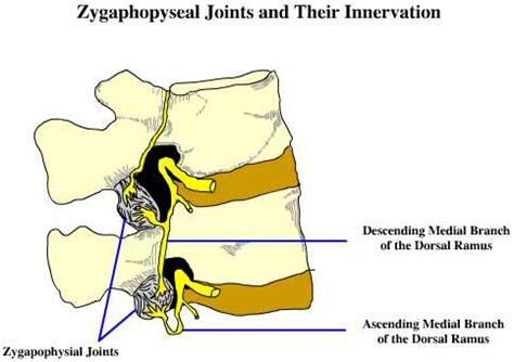 facet joint nerve eblasion picture 2