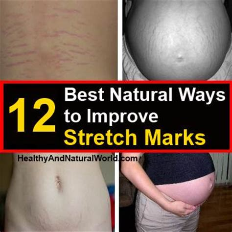 best way help stretch mark picture 7