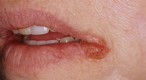 hydroxycut herpes symptoms picture 2
