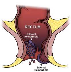 internal hemorrhoids picture 7