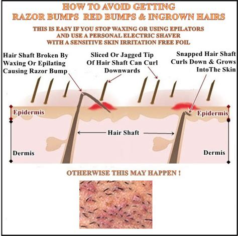 hot wax hair removal for acne picture 15