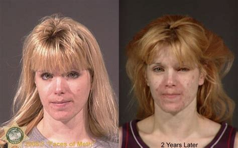 crystal meth and acne picture 2