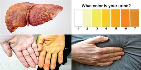 damaged liver symptoms picture 3