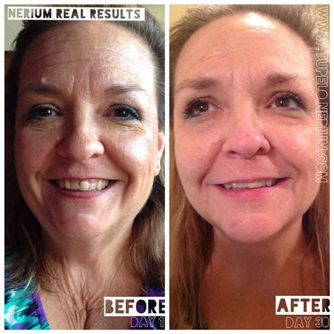 anti aging before and after pixtures picture 8