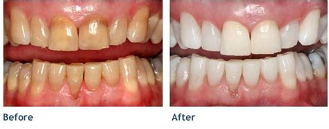 new york tooth whiten picture 11