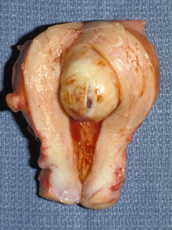 fibroid pressing on bladder picture 6