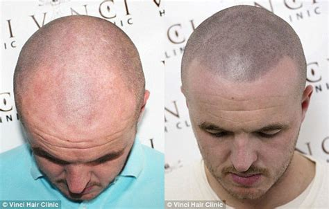medication for bald head 2015 picture 1