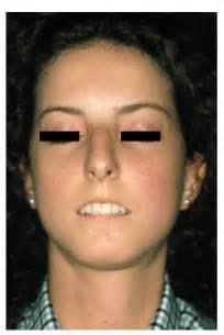 lupus skin picture 3