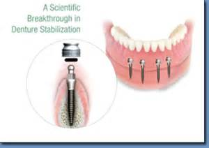 incoming search terms dental implants keywordluv picture 15