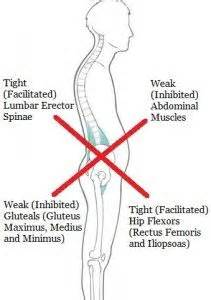 hip pain leftside body muscles weak picture 2