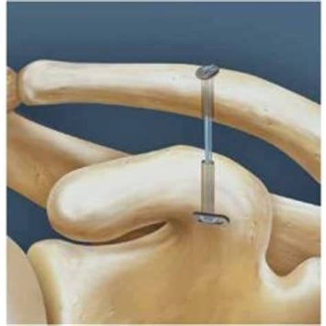 chronic ac joint seperation picture 18