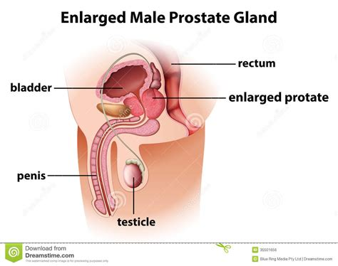 pictures male genital exam picture 3