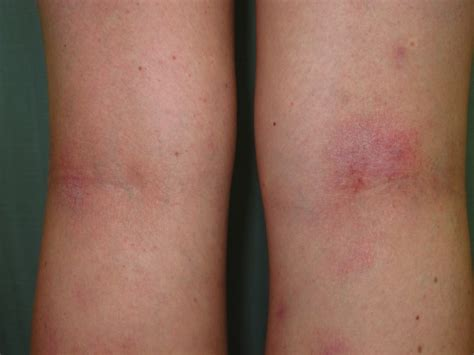eczema skin -weight -loss picture 10
