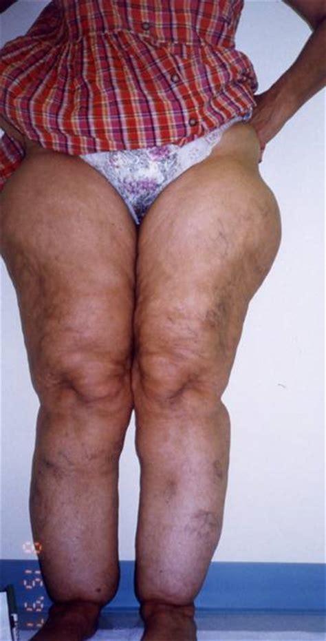 cellulite ssbbw picture 5