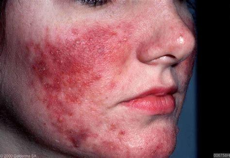 acne rosecea picture 3