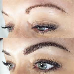hair loss eyebrows picture 3
