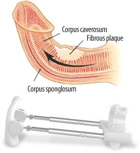 curved penis medical pictures of picture 3