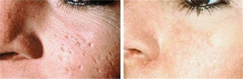 cover acne pit scar skin picture 14