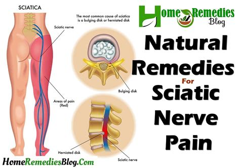 natural pain relief picture 1