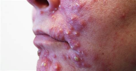 aspirin for acne picture 2