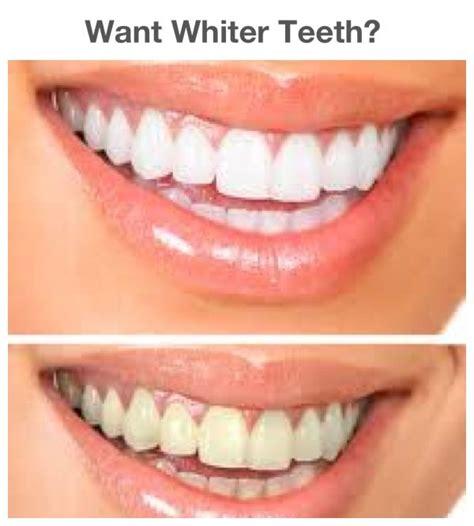 california whiten teeth picture 2