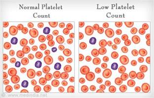 high platelet count bladder picture 10