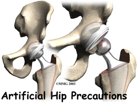 hip joint slipping in and out picture 2