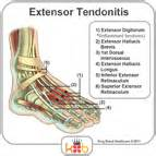 tendonitis relief picture 2