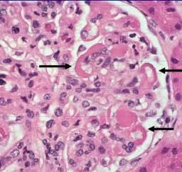 nephritis intestinal picture 10