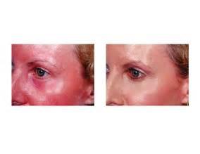 fractal skin procedure picture 3