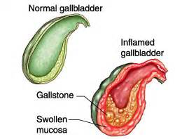 gall bladder inflamation picture 6