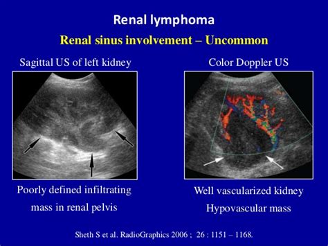cyst on liver or spleen picture 10
