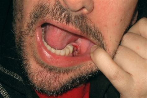 absessed teeth picture 6