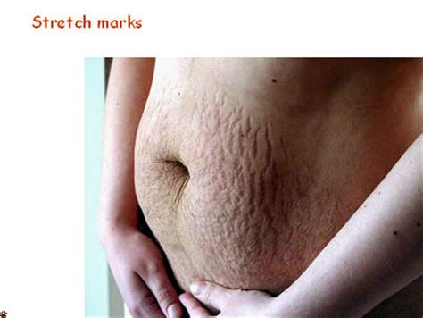 can maca heal stretch marks picture 7